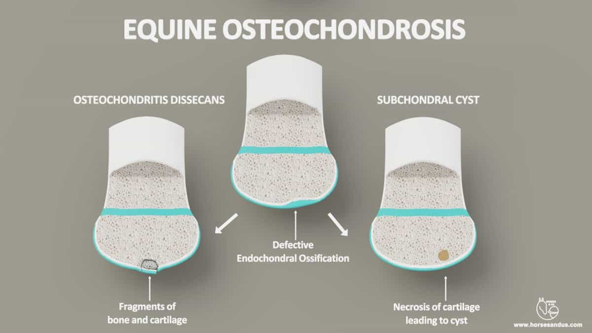 Osteochondritis dissecans and subchondral cysts